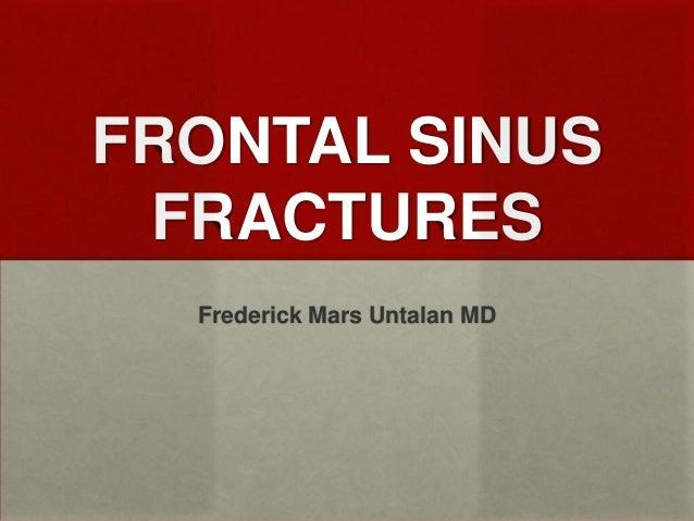 FRONTAL SINUS FRACTURES Frederick Mars Untalan MD