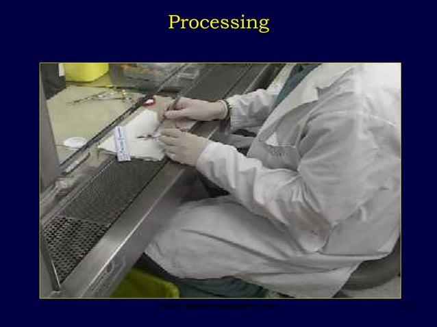 22 Processing www.indiandentalacademy.com
