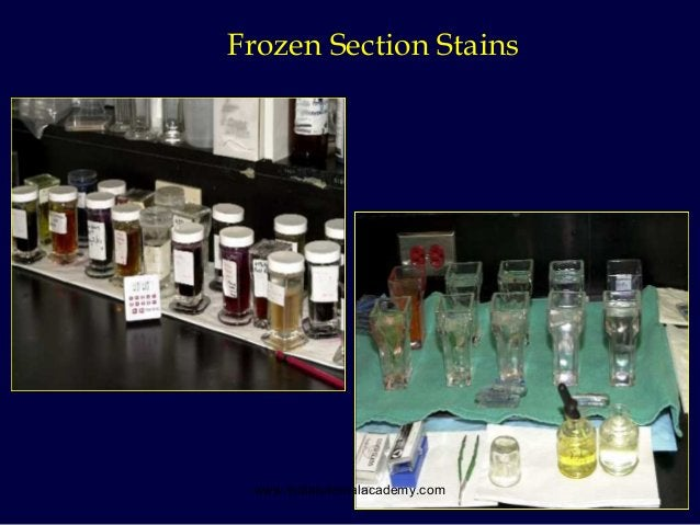 28 Frozen Section Stains www.indiandentalacademy.com