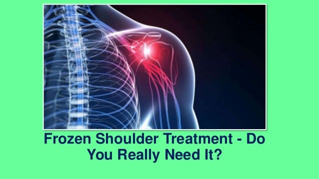 Frozen Shoulder Treatment - Do You Really Need It?
