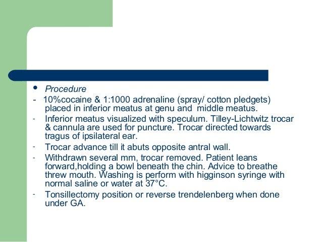 surgical management of sinusitis Inferior Meatus Puncture