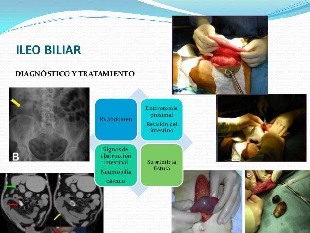 Fistula biliar postcolecistectom a