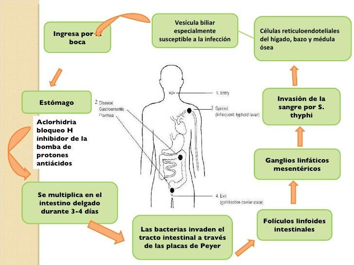 Typhoid Fever (Salmonella typhi)