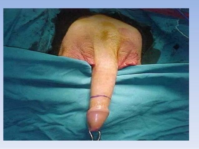 Men sex change surgery video calendar sexy pussy