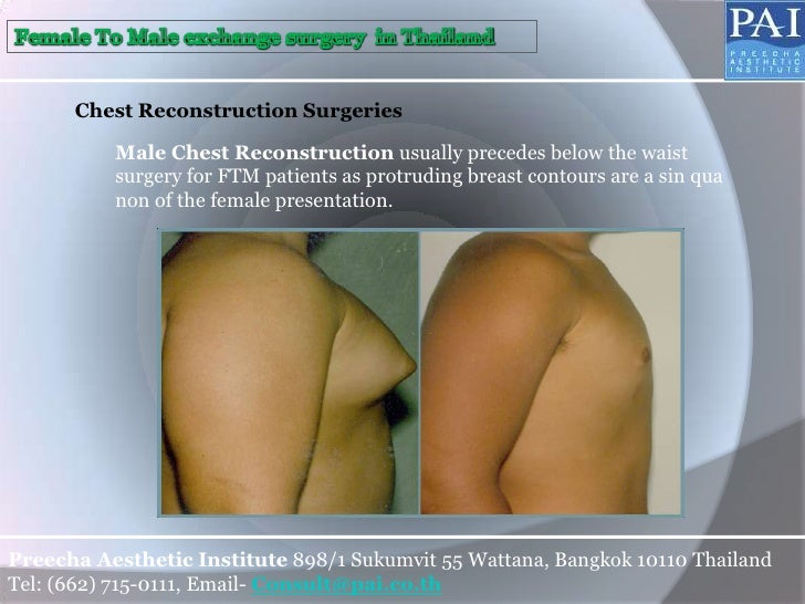 Transsexual bottom surgery female to male