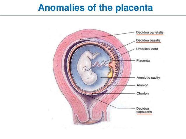 gestational trophoblastic disease