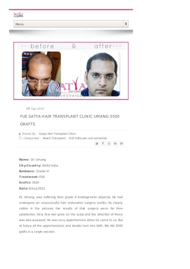 FUE SATYA HAIR TRANSPLANT CLINIC UMANG 3500 GRAFTS Posted By : Satya Hair Transplant Clinic Categorized : Beard Transplant...