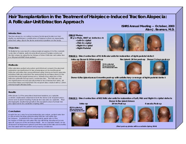 Hair Transplantation in the Treatment of Hairpiece-Induced Traction Alopecia:A Follicular-Unit Extraction Approach        ...