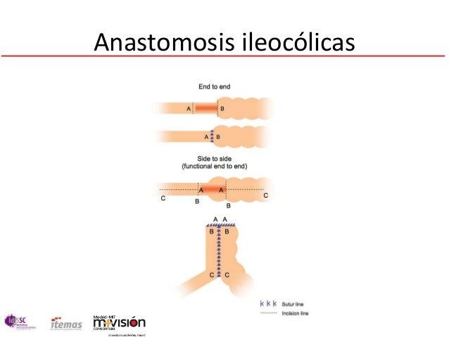 Anastomosis ileocólicas