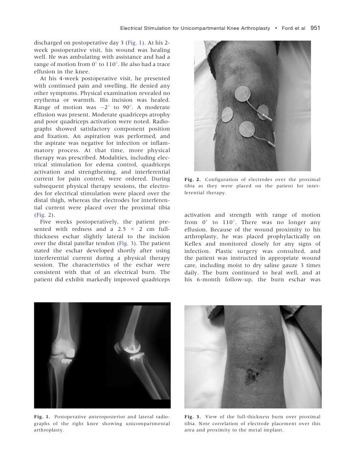 Electrical Stimulation for Unicompartmental Knee Arthroplasty ! Ford et al 951discharged on postoperative day 3 (Fig. 1). ...