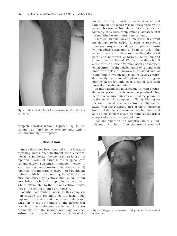 952 The Journal of Arthroplasty Vol. 20 No. 7 October 2005                                                             imp...