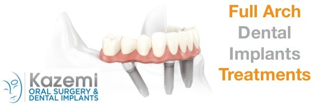 Full Arch Dental Implants Treatments