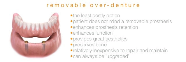Full arch dental implants presentation- lunch and learn