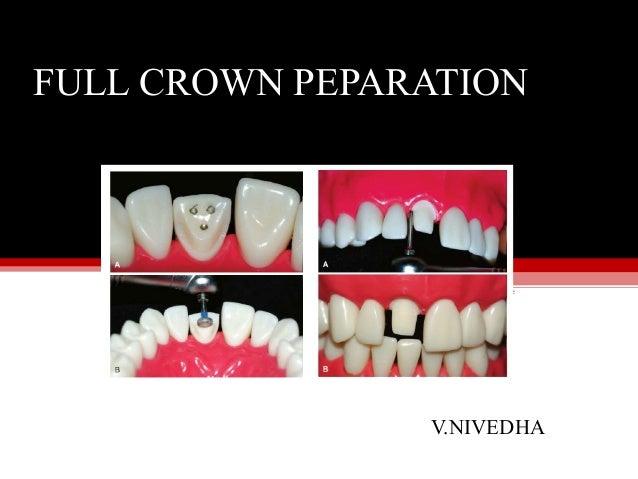 V.NIVEDHA FULL CROWN PEPARATION