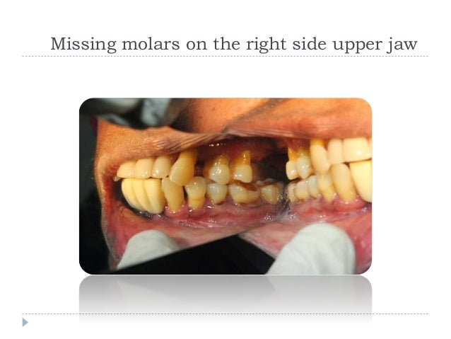 Full mouth dental implant cost