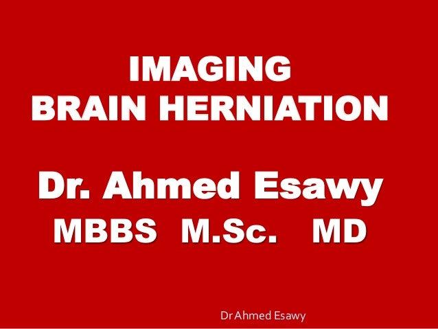 IMAGING BRAIN HERNIATION Dr. Ahmed Esawy MBBS M.Sc. MD Dr Ahmed Esawy