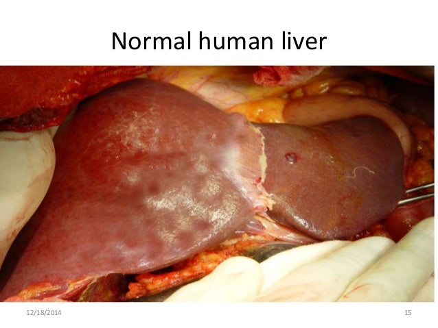 how to get a healthy liver
