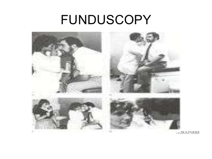 FUNDUSCOPY <ul><li>NURAIN8118 </li></ul>