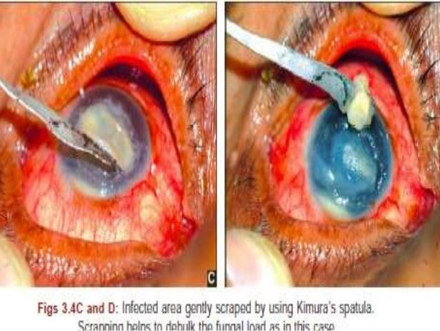 Fungal corneal ulcer