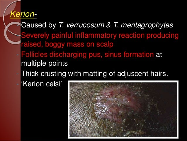 Fungal infection in hair