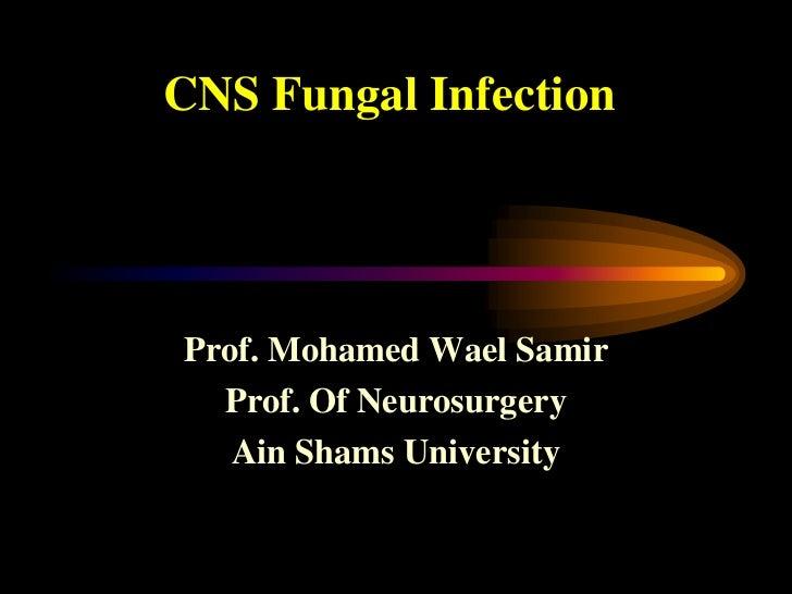 CNS Fungal InfectionProf. Mohamed Wael Samir  Prof. Of Neurosurgery   Ain Shams University