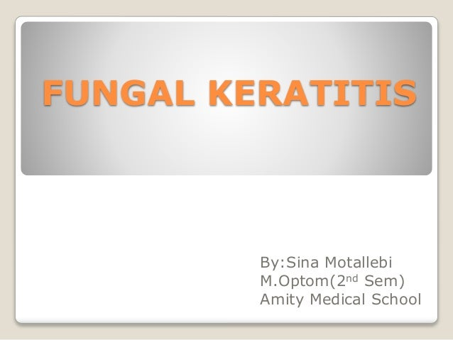 FUNGAL KERATITIS By:Sina Motallebi M.Optom(2nd Sem) Amity Medical School