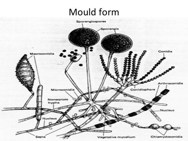 Fungal Presentation