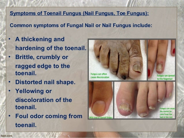 5 Symptoms Of Toenail