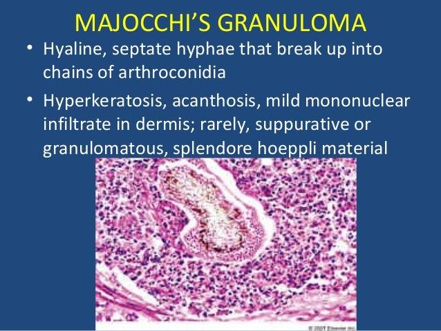 Fungi in tissue sectio...