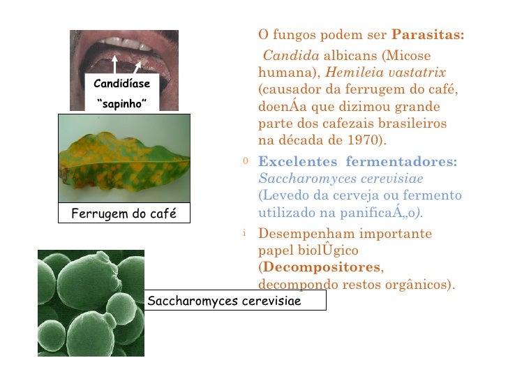 Se é possível tratar um fungo do vinagre de pernas