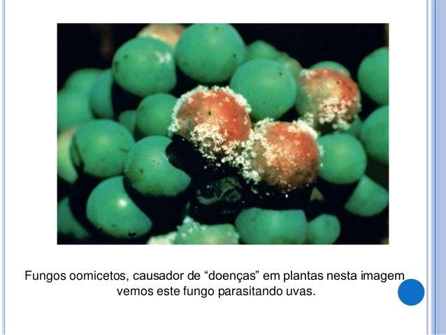 MICOSES SUPERFICIAIS  piedra negra piedraia hortai tinea nigra hortae werneckii  Pititríase versicolor Malassezia spp  ...