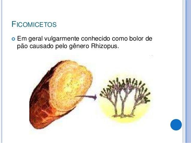  Tinea capitis  É mais comum em crianças. É uma lesão circular no couro cabeludo com uma área restrita de alopécia. Pode...