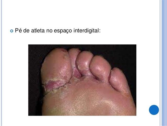 SINAIS E EXAMES:  O diagnóstico se baseia originalmente na aparência da pele. Pode-se realizar um exame de fluorescência ...