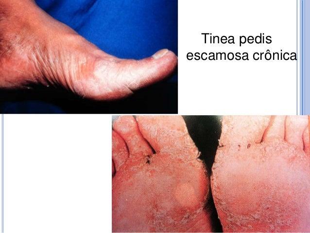 MICOSES OPORTUNISTAS  Candida.  Aspergillus spp  Penicillium spp  Cryptococais neoformans.