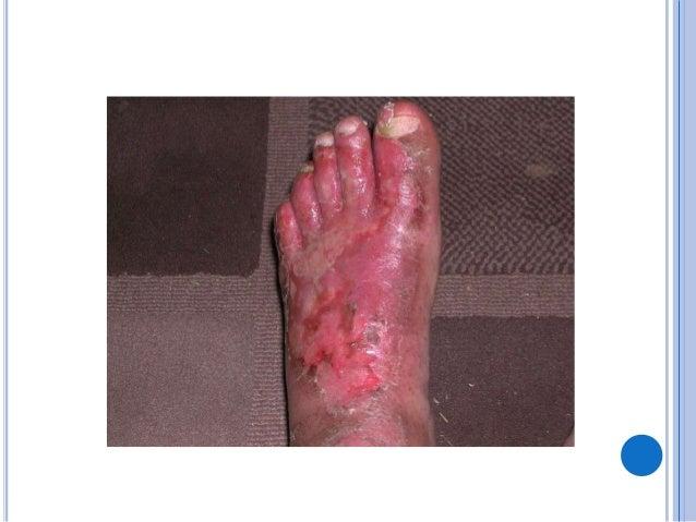 TRATAMENTO  O tratamento das infecções sistêmicas pode ser realizado com medicações endovenosas ou orais com antifúngico ...