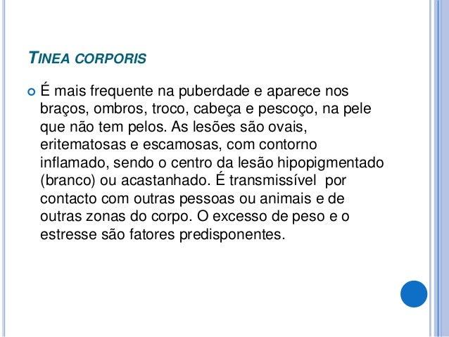MICOSES SUBCUTÂNEAS Principais micoses subcutâneas :  Cromoblastomicose.  Esporotricose.  Micetoma  Etc. Principais ca...