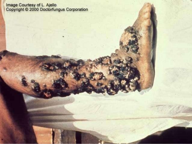 Fungos e doenças relacionadas