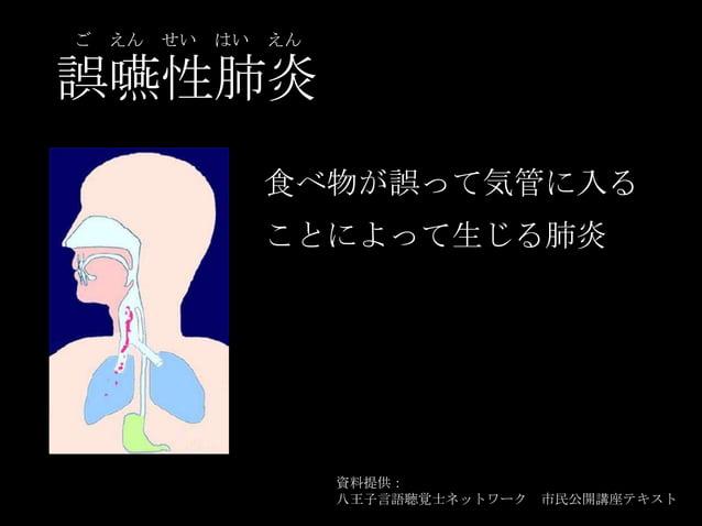 誤嚥性肺炎 ご えん せい はい えん 食べ物が誤って気管に入る ことによって生じる肺炎 資料提供: 八王子言語聴覚士ネットワーク 市民公開講座テキスト