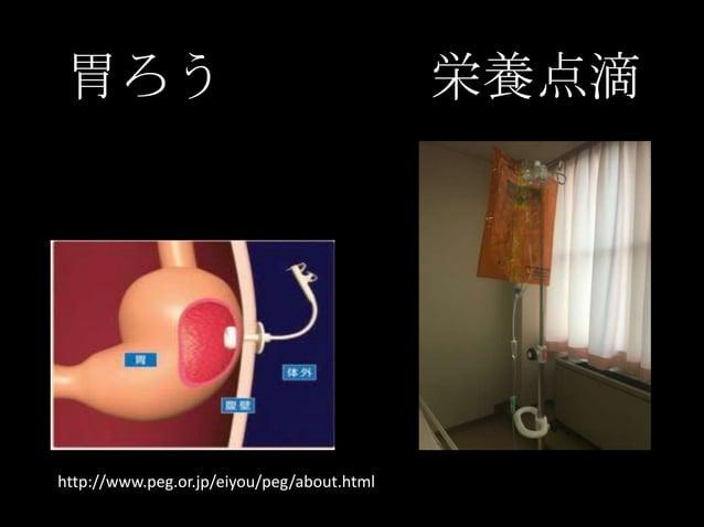 胃ろう 栄養点滴 http://www.peg.or.jp/eiyou/peg/about.html