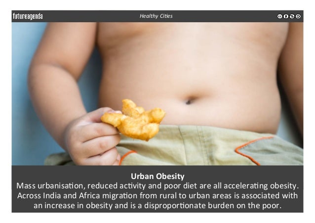 Urban  Obesity   Mass  urbanisa3on,  reduced  ac3vity  and  poor  diet  are  all  accelera3ng  obe...