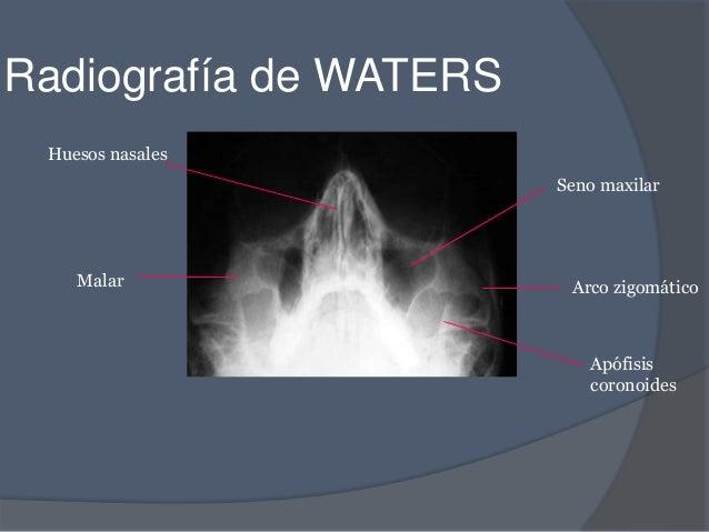 corticosteroides nasales efectos
