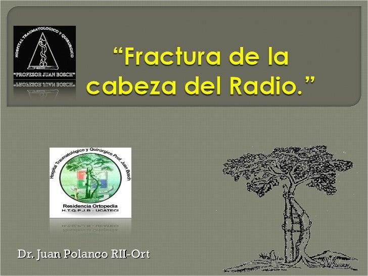 Fx cabeza radio for Datos juan polanco