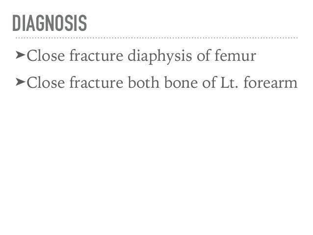 fx femur diaphysis