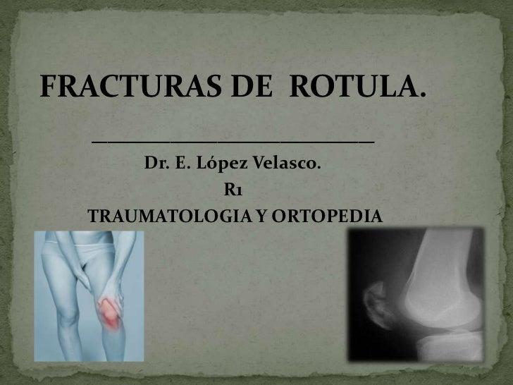 FRACTURAS DE  ROTULA.<br />__________________<br />Dr. E. López Velasco.<br />R1<br /> TRAUMATOLOGIA Y ORTOPEDIA<br />