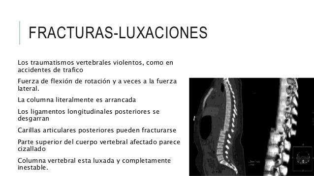 Ligamentos de columna vertebral pdf printer