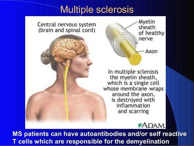 g2014immuno 14immtolerance amp autoimm diseasesls2