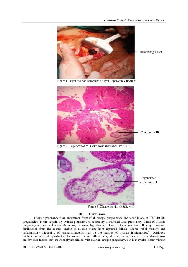 Ovarian Ectopic Pregnancy - Ectopic Pregnancy: A Clinical