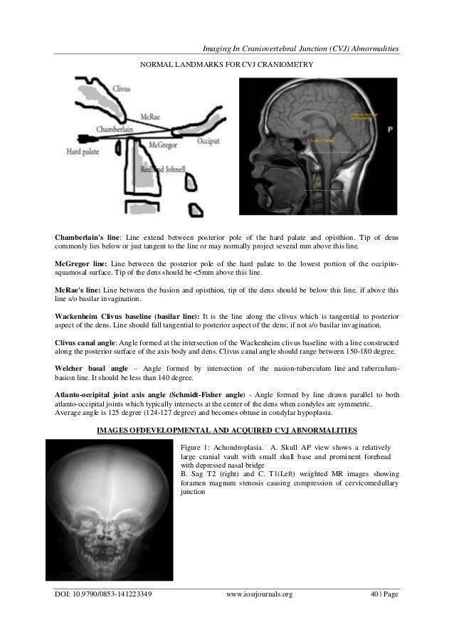 Imaging In Craniovertebral Junction (CVJ) Abnormalities