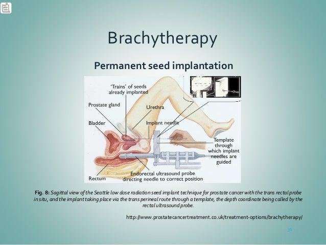 Brachytherapy Prostate Cancer