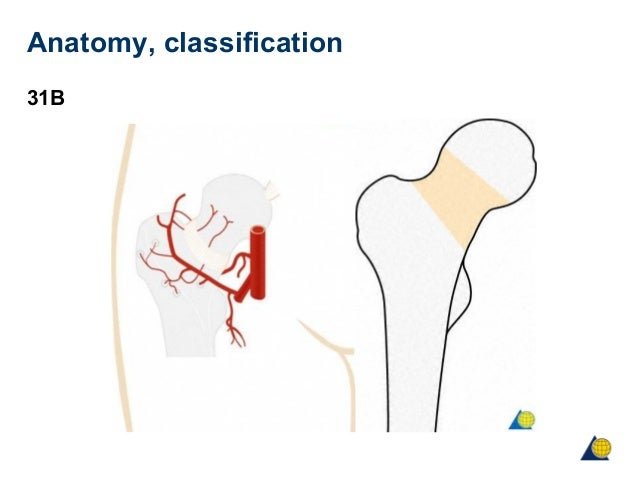 Femoral neck anatomy classification 31b ccuart Image collections